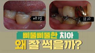 삐뚤삐뚤한 치아 왜 잘 썩을까? 치료방법 / 어금니임플…