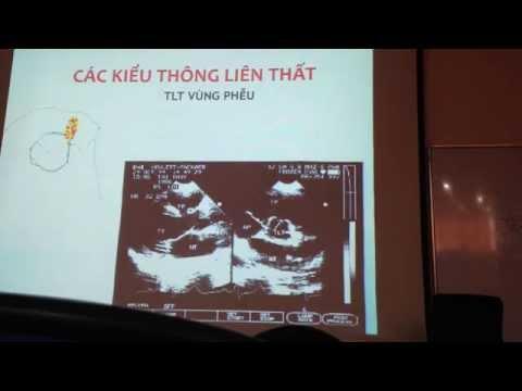 bài giảng siêu âm tim thông liên thất p1