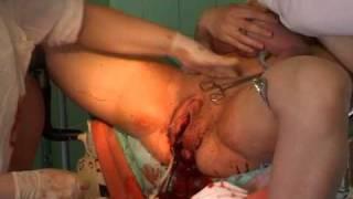 Repeat youtube video 3 Kostnera Chukalova2