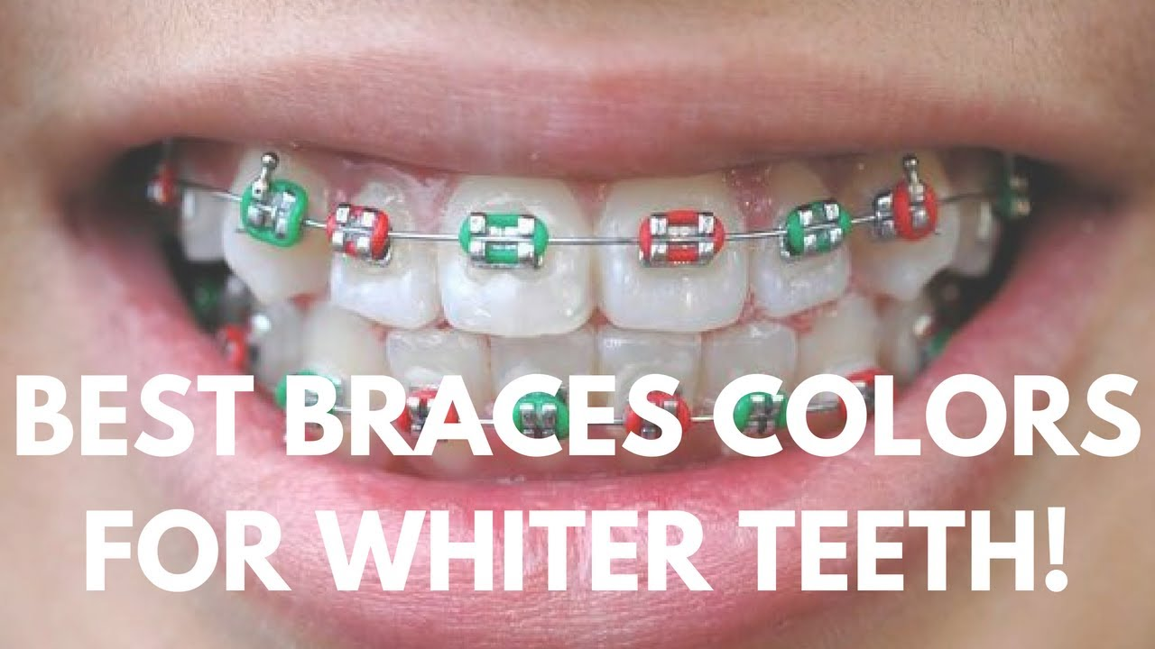 Harrisburg Orthodontist Benton Herrin Illinois Braces