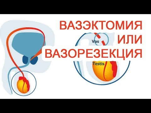 Вопрос: Как сделать вазэктомию?