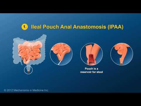 Small Bowel and Large Bowel Surgery