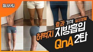 허벅지 지방흡입 Q&A 2탄 | 가격, 효과, …