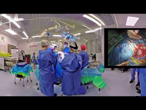VR Surgery - Brain aneurysm