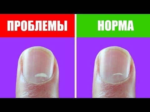 Белые черточки на ногтях