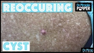 A Reoccuring Cyst that needed a Good Curette!