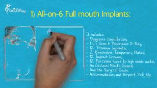 Watch Video All on Six Cheap Dental Implants in Los Algodones Mexico