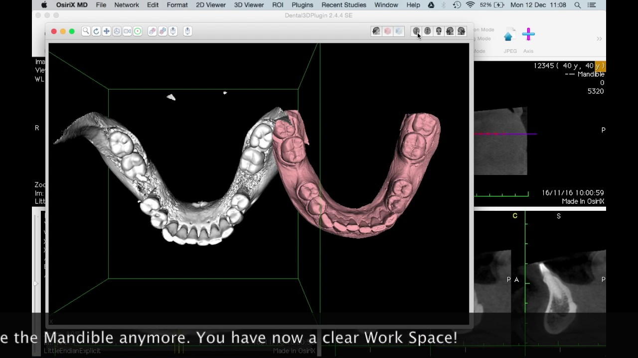 How to Separate the Maxilla and the Mandible of your CT-Scan with ...