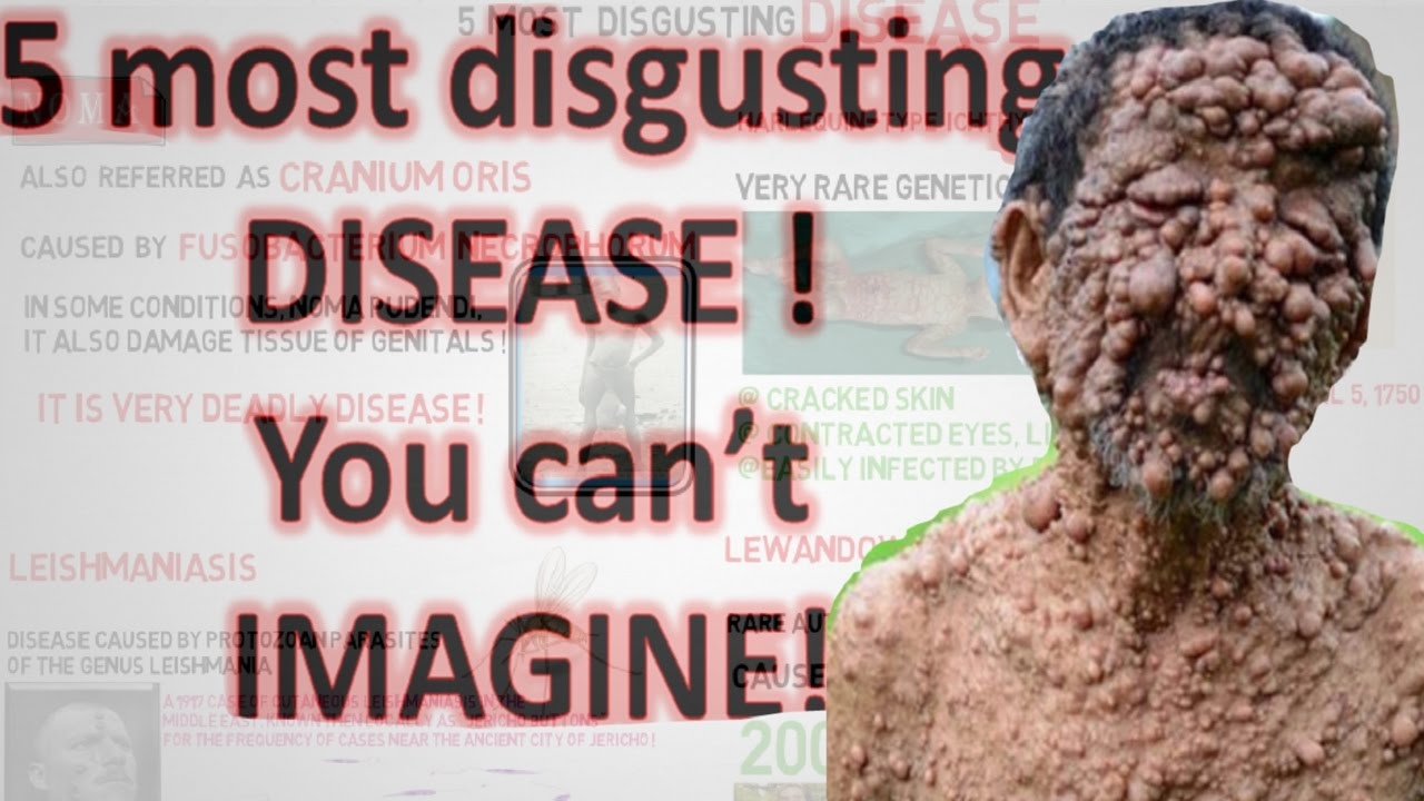 Disgusting Diseases - 5 most disgusting disease ever you can t imagine
