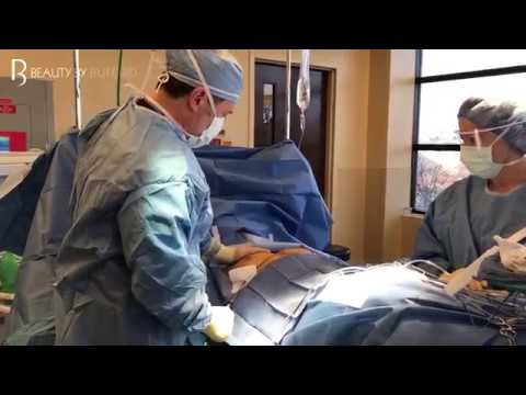 Male Breast Reduction Surgery | Gynedomastia Surgery | Dr. Gregory Buford | Denver, CO