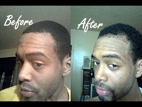 Three 100 Natural Hair Regrowth Success Stories Amp Before