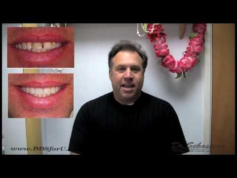 good-dentist-in-huntington-beach-&-corona-ca