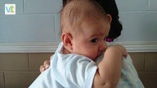 Como prevenir y corregir el síndrome de cabeza plana en los bebes.