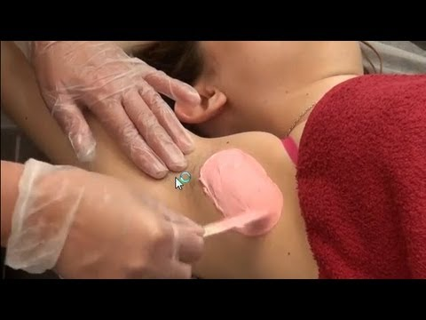 Underarm wax using single dip method