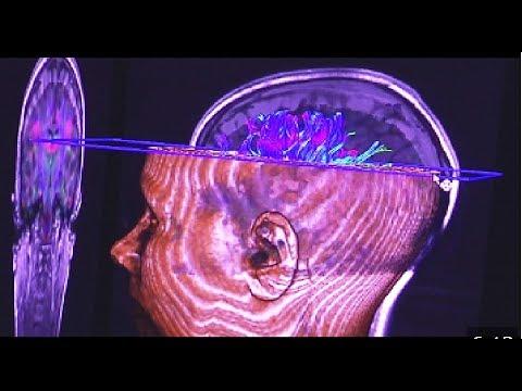 Esquizofrenia, nuevos descubrimientos psiquiátricos. - YouTube