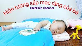 Biểu hiện của bé sắp mọc răng/ChinChin Channel