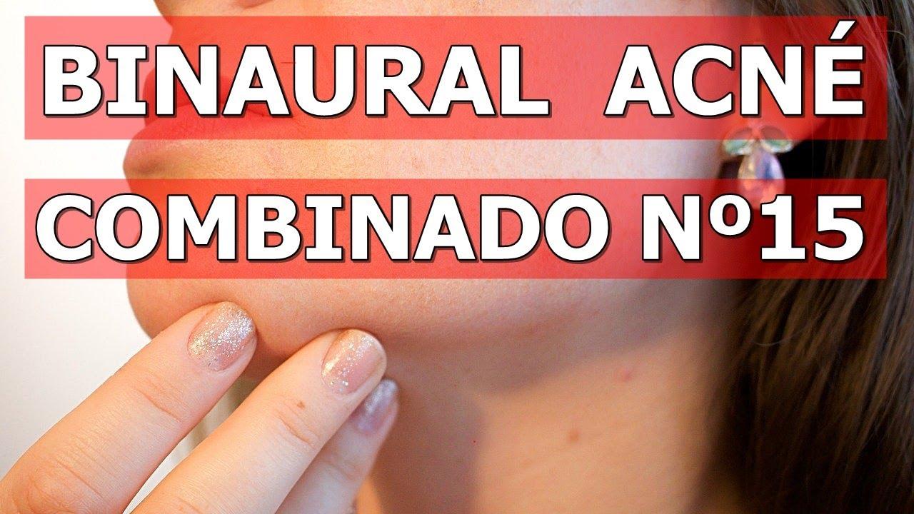 BINAURAL PARA ELIMINAR ACNÉ, GRANOS, COMEDONES - PUNTOS NEGROS. COMBINADO MÚLTIPLE Nº15