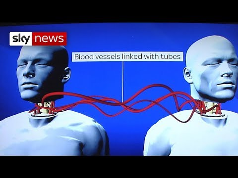 World's First Head Transplant: What's Involved?