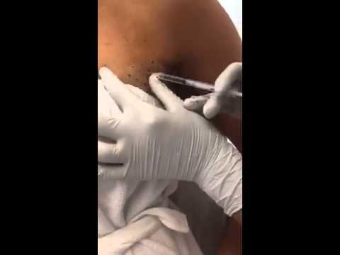Dissolving arm fat or