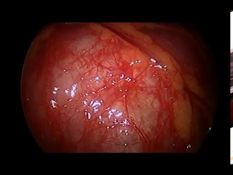 Desmoid Tumor video