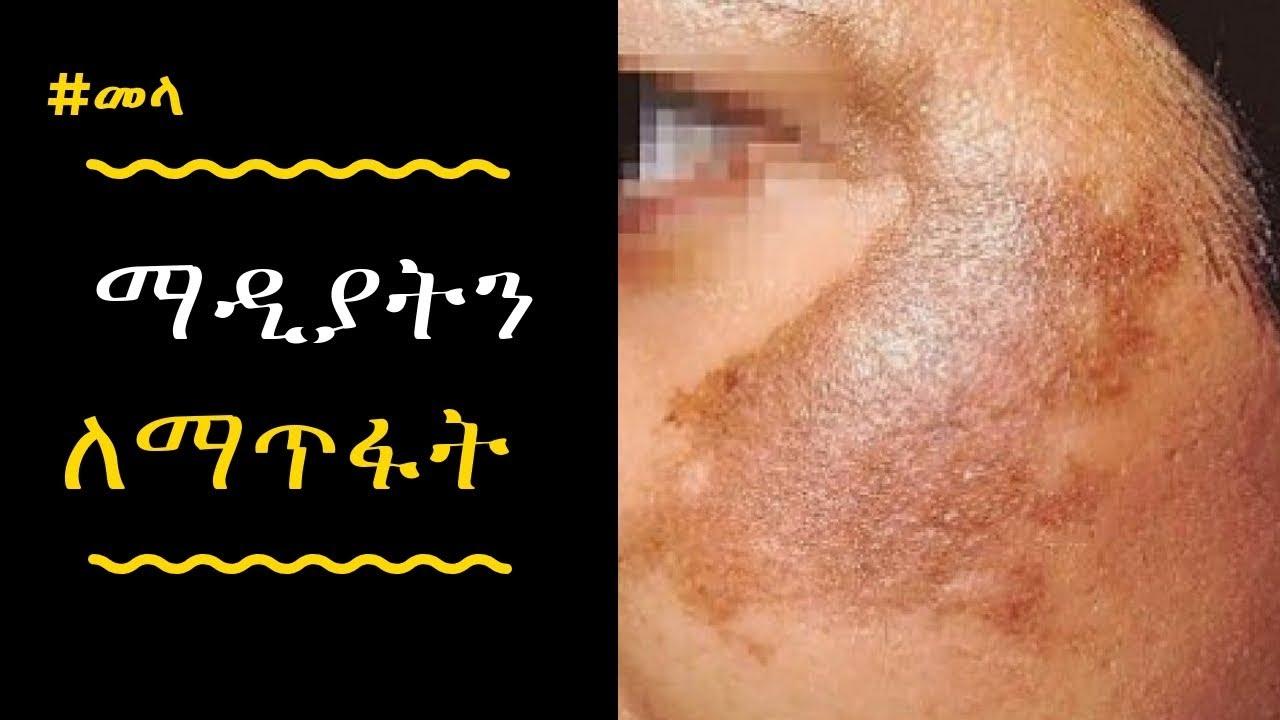 How To Use Potato To Treat Skin Pigmentation