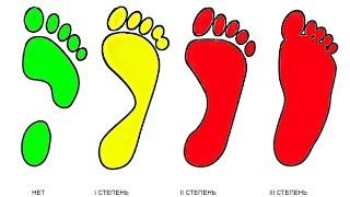 Как Выбрать Обувь для Плоскостопия. Подобрать Часть 2