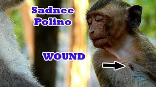 Unfortunately Life Poor Monkey Polino  Up Set Mind Down After Lose His Mum|Polino Sad Hurt On Wound