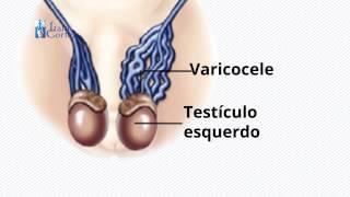Sintomas da escrotal sinais e varicocele