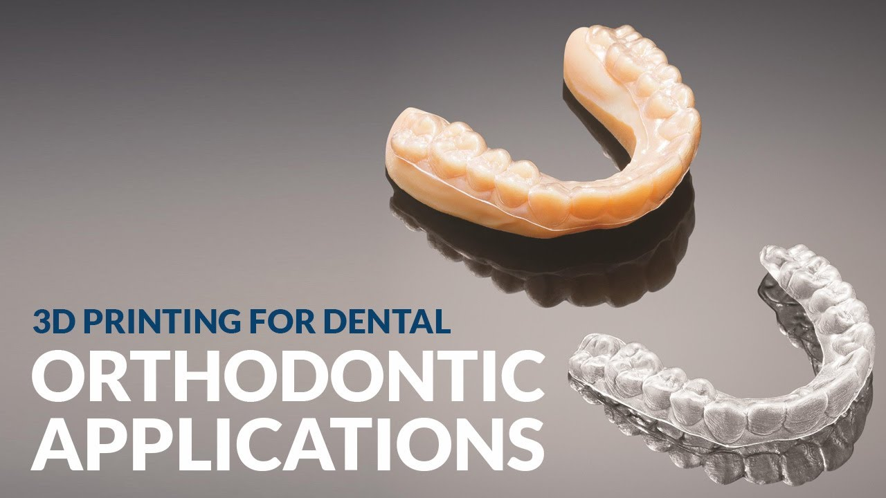 3d printing orthodontic applications 3d printing for - Where can i buy a 3d printed house ...