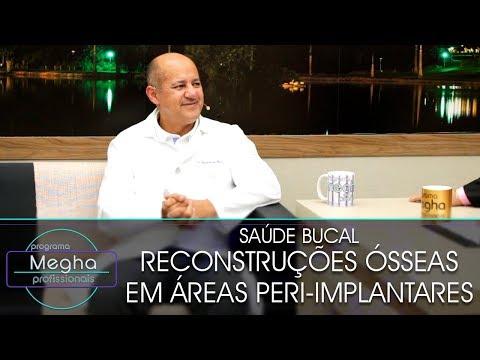 Reconstruções Ósseas Em Áreas Peri-Implantares | Dr. Eudécio De Melo | Pgm 646 | B2