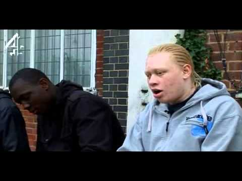 Albino black man?