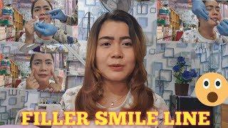 FILLER SMILE LINE/ FILLER GARIS SENYUM😊