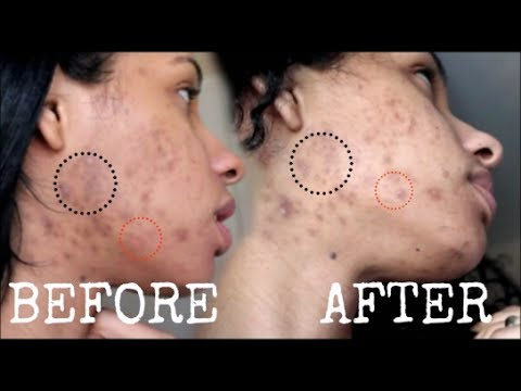 how to get rid of acne in 2 weeks