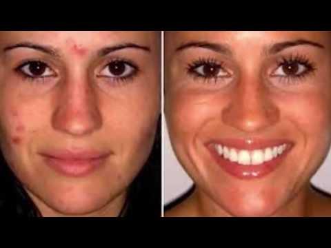 Top 5 Most Disturbing Skin Conditions - top 5 worlds most disturbing skin conditions