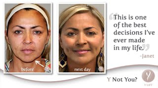 Y LIFT ® 2015 - Janet | Instant, Non Surgical Facelift
