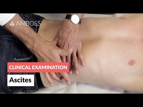 Ascites: Shifting Dullness - Clinical examination | Δ AMBOSS