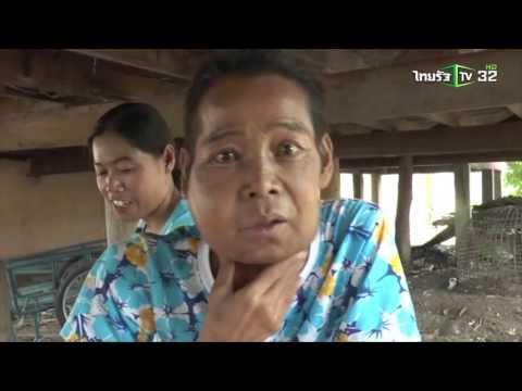 วอนช่วย 'แดง จิตกร' นักร้องลูกทุ่งชื่อดัง ป่วยมะเร็งระยะสุดท้าย | 09-04-59 | ThairathTV