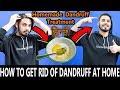 How To Get Rid Of Dandruff At Home | Homemade Dandruff Treatment | Asad Ansari