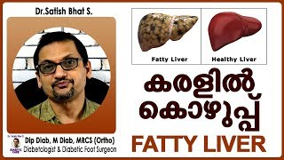 കരളിൽ കൊഴുപ്പ് (FATTY LIVER)   Dr.Satish Bhat's   Diabetic Care India