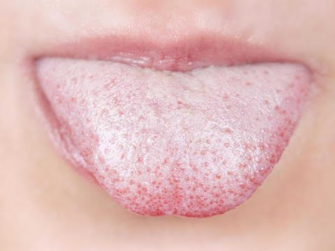 How To Get Rid Of A Cold Sore Cold Sore Treatment,Remedies & Medicine by  gina starkeno