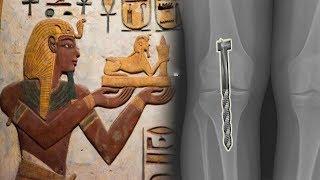 Experten Verstehen Nicht, Wie Die Ägypter Dieses Wissen Hatten