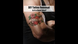 DIY Tattoo Removal: Is It a Good Idea?