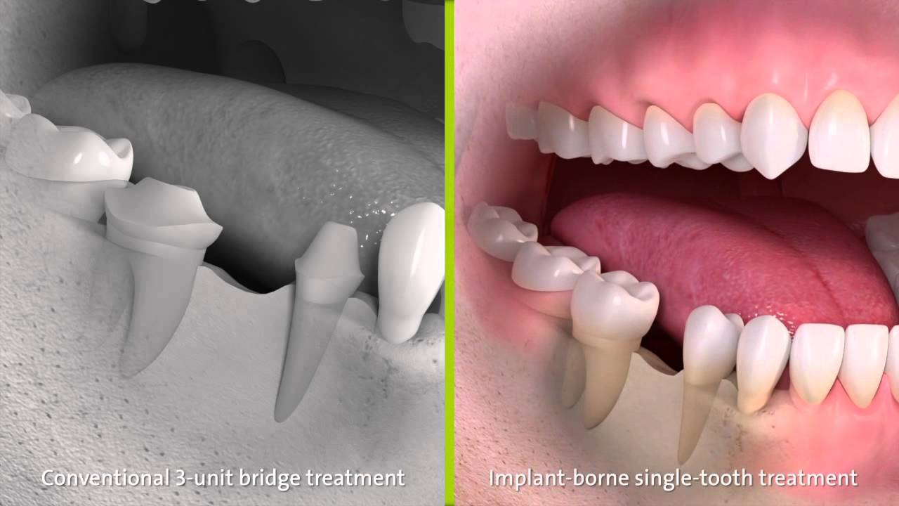 Is a Tooth Bridge Right for You? Dental Bridge Costs, Types