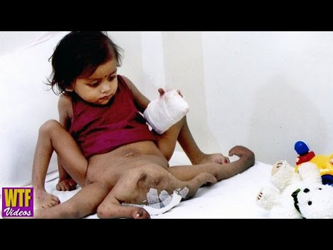 Polymelia - A Birth Defect Of The Limbs | Worst Medical Disorder