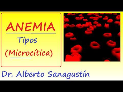 Anemias (1): síntomas y tipos | Anemia Microcítica #Hematología