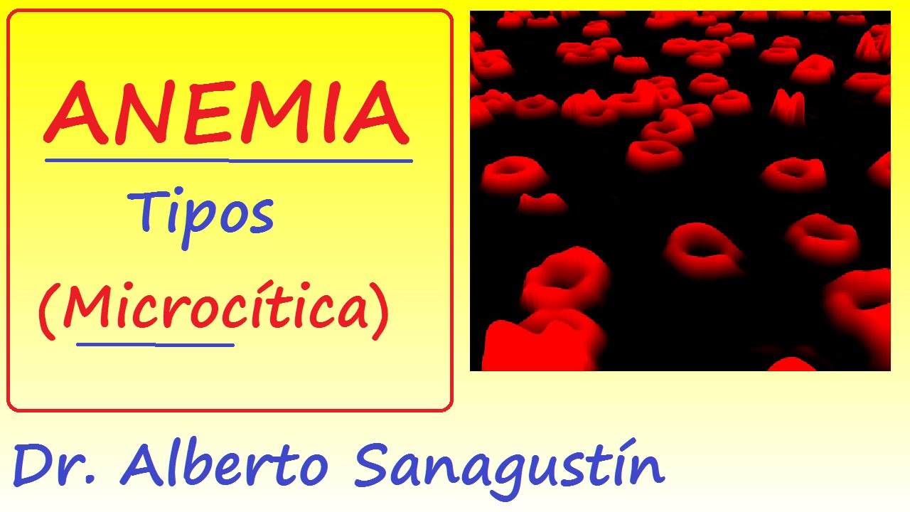 anemia ferropenica valores de hemograma