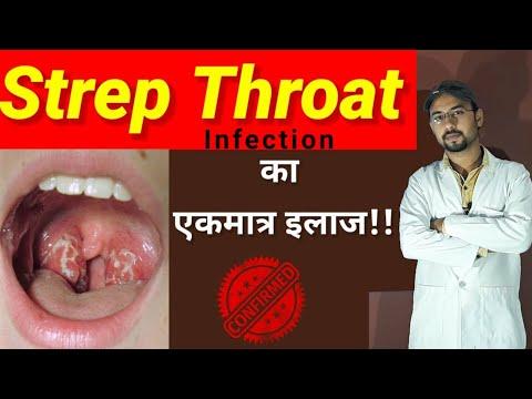 Throat infection treatment   throat pain   sore throat treatment   strep throat infection symptoms