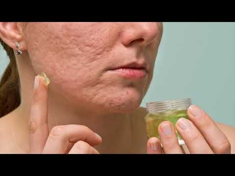 Natural And Effective Treatment For Acne During Pregnancy Is Honey- How To Use