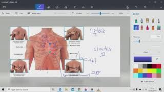 Katup semilunar terdiri dari katup aorta dan pulmonal Katup atrioventrikel terdiri dari mitral dan t.