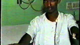 Post stroke tremors :  Preop & Postop  Condition - Dr.Paresh K Doshi